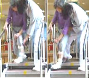 階段を降りる時に麻痺側下肢が内転する写真