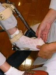 装具を付ける時のポイントとして爪先を伸ばす