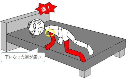麻痺側に寝返ると下になった肩が痛い