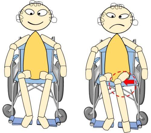車椅子上、股が内側に倒れるイラスト