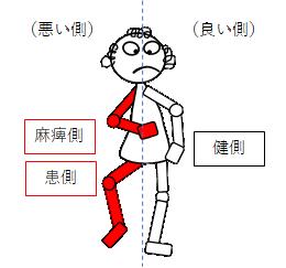 片麻痺の健側と患側の意味のイラスト