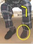 装具を付ける時のポイントとして膝を曲げる事