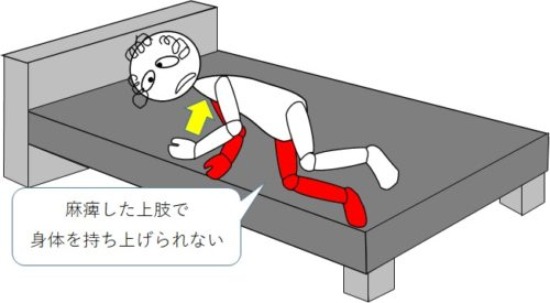 麻痺した上肢で身体を持ち上げられない